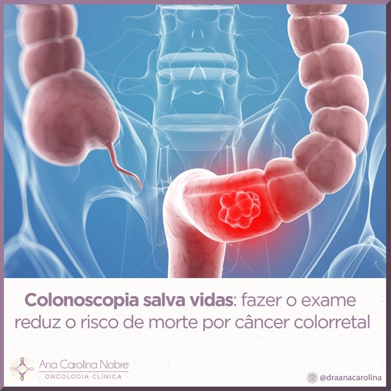 Exame do intestino colonoscopia