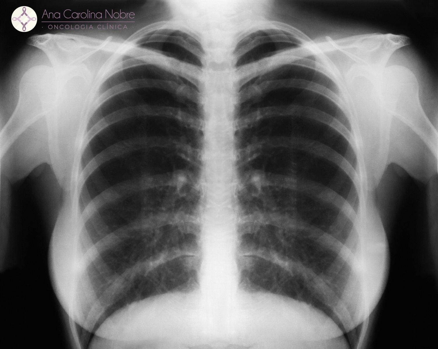 Extremamente Rastreamento Câncer de Pulmão LE41