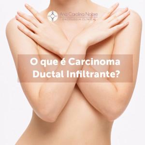 O que e carcinoma ductal infiltrante